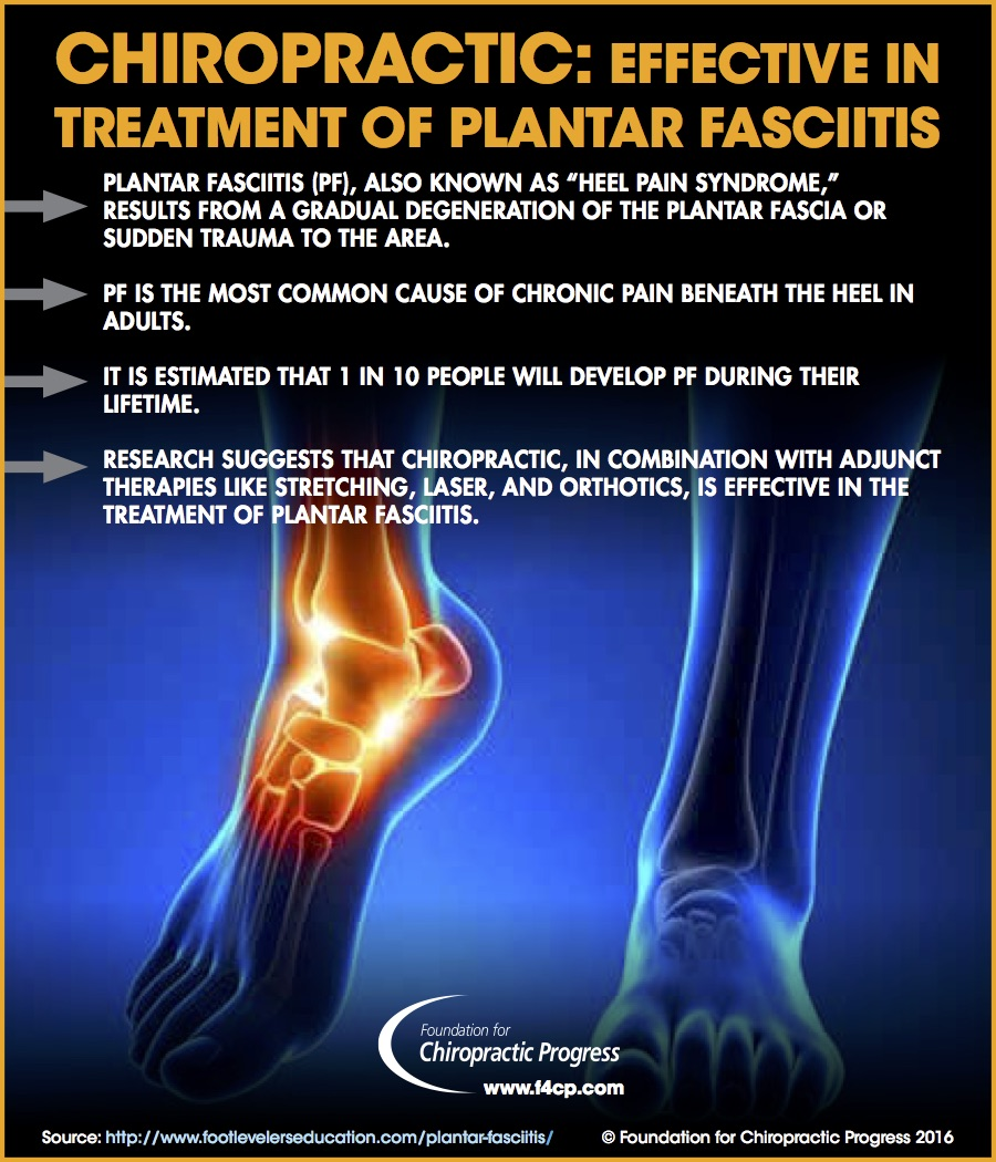 chiropractic effective against plantar fasciitis (infographic)