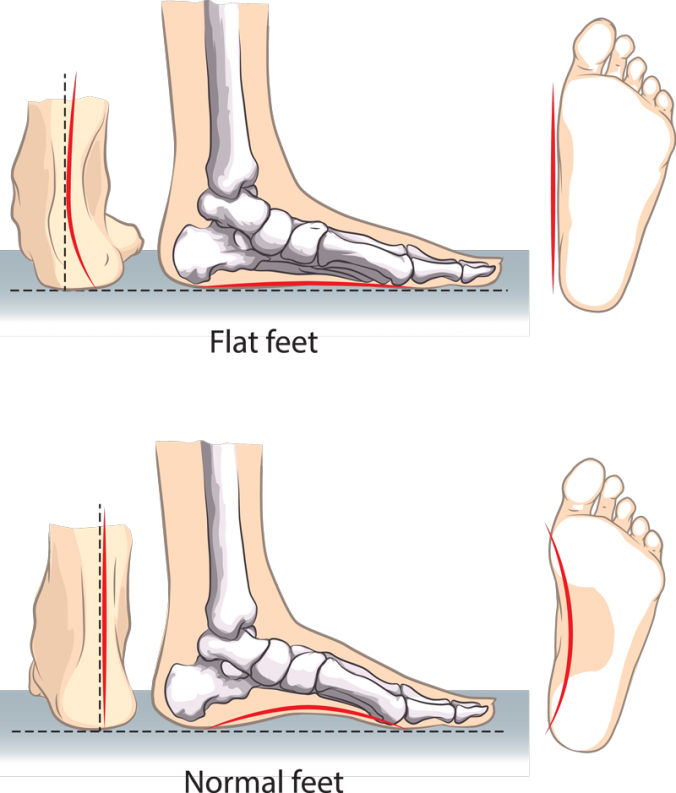 flat feet infographic