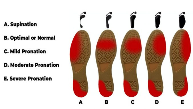 Supination severity diagram