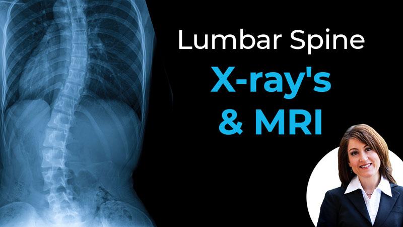 Lumbar Spine X-ray's & MRI