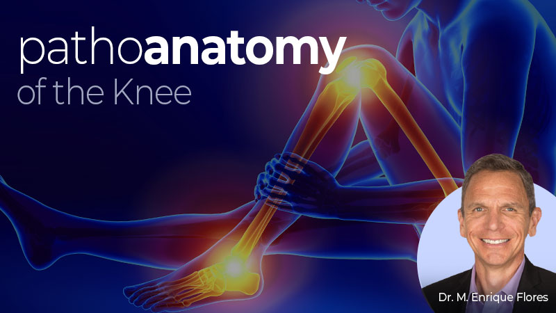 Pathoanatomy of the Knee