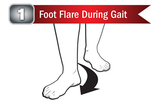 Foot Flare