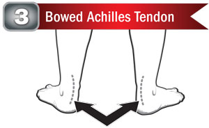 Bowed Achilles Tendons