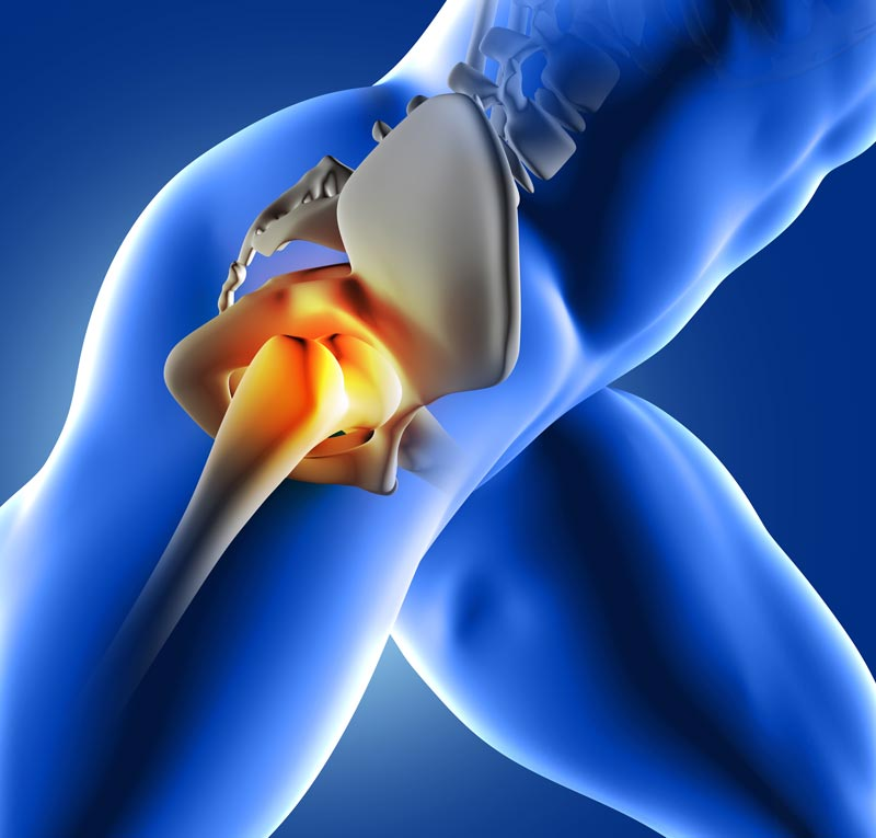 Relief for hip pain
